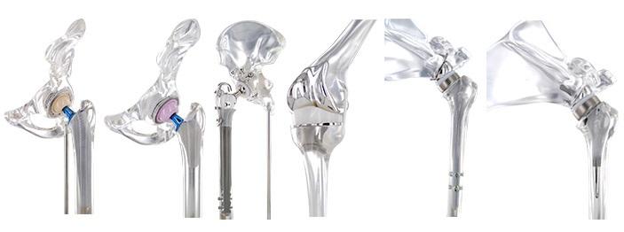 Orthopedics Implants Distribution in Brazil   Amaral & Cia